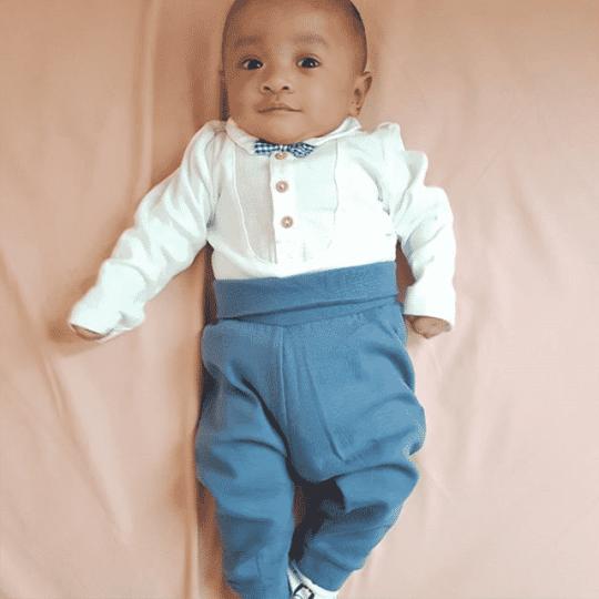 Bayi Prematur Adalah Pejuang